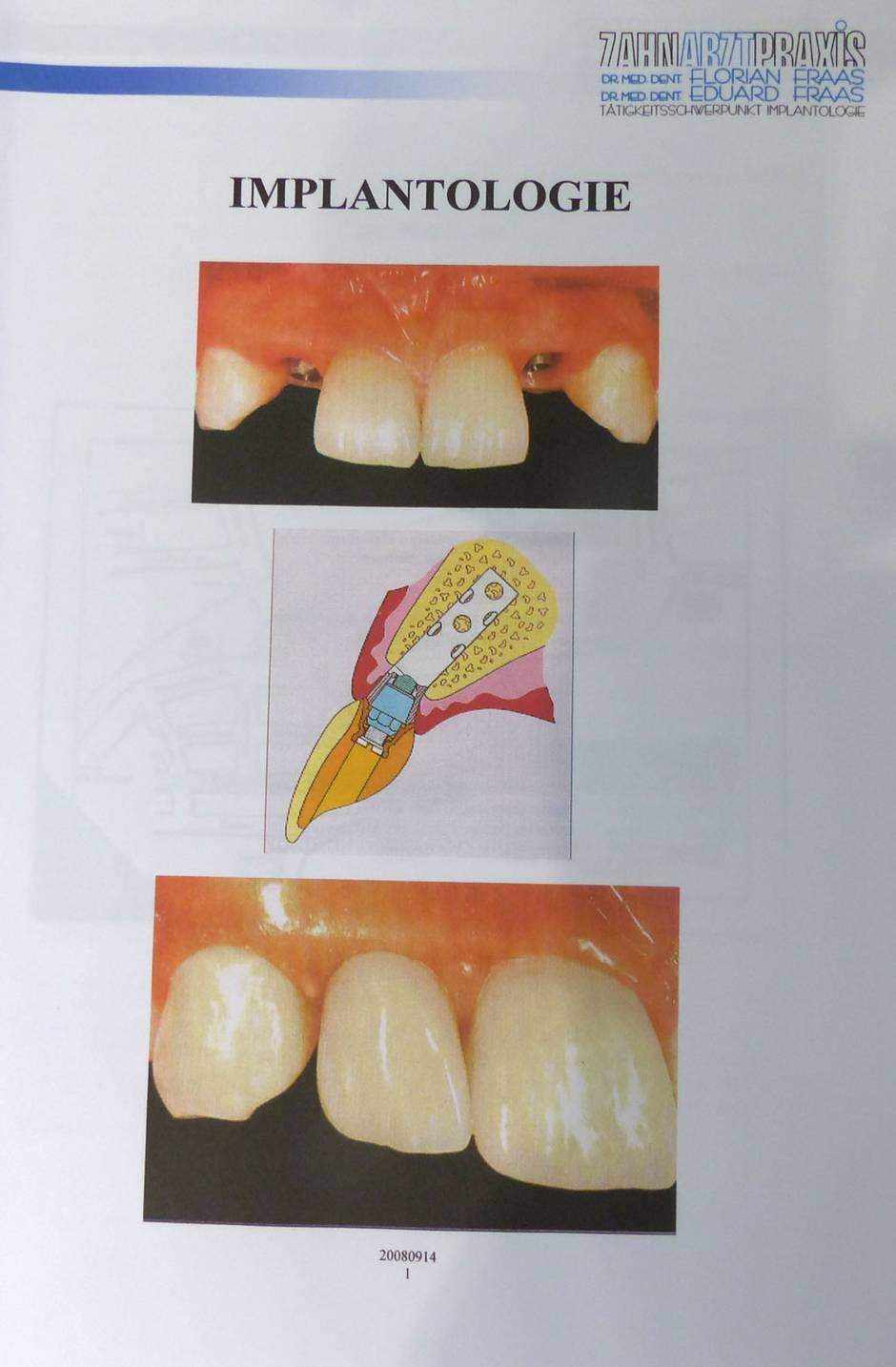 Implantatordner